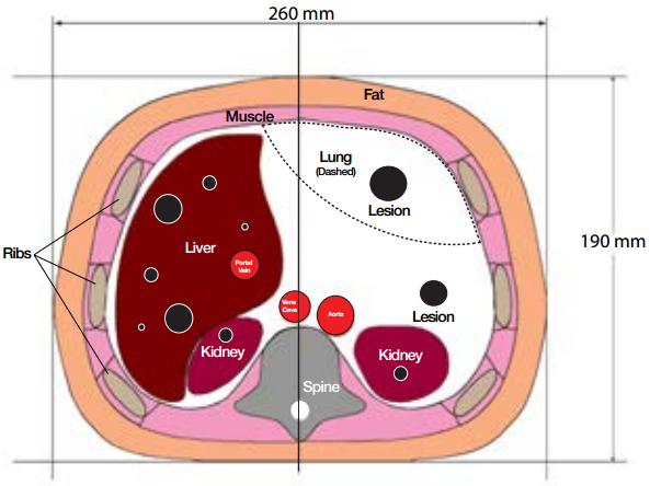 CIRS 057A Diagram