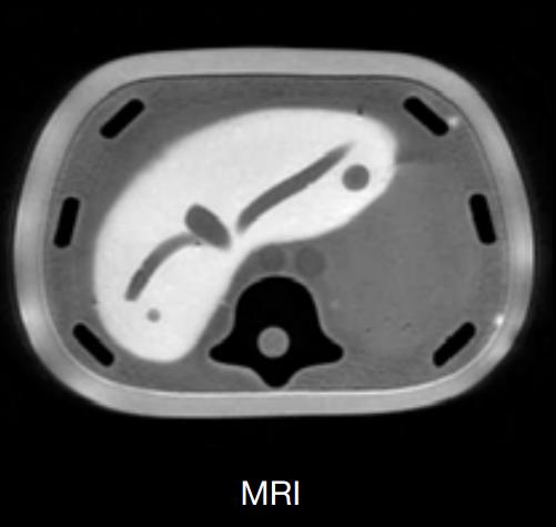 CIRS 057A MRI Image